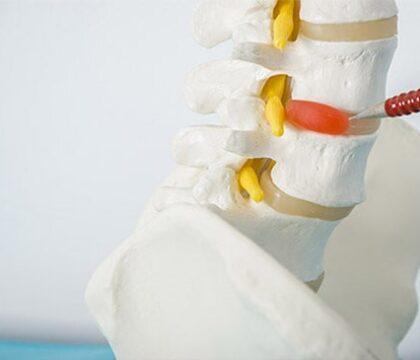 herinated disc symptoms